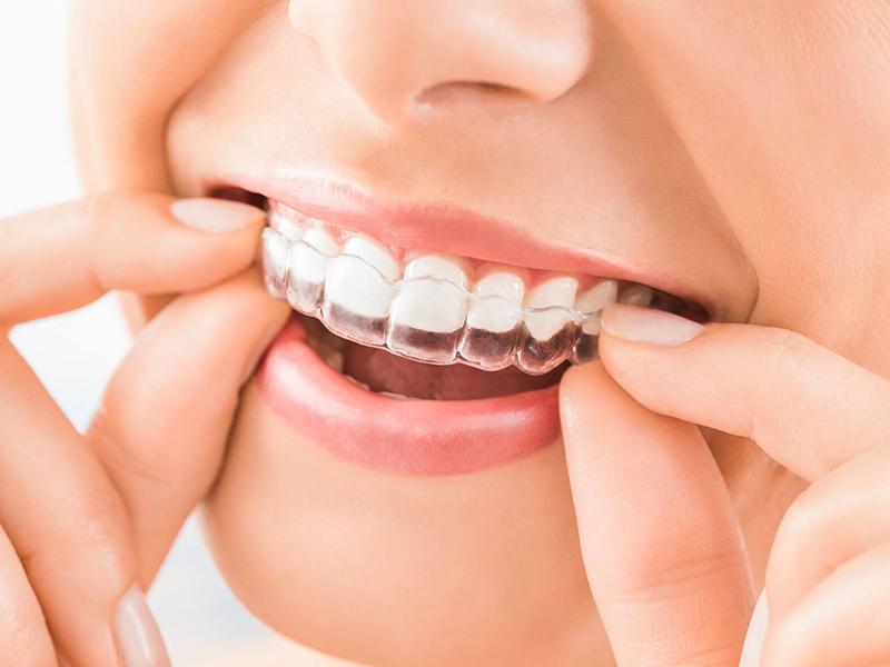 ortodonzia - invisibile - Studio Dentistico Dottoressa Annalisa Dellimauri